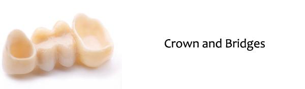 Raritan Dentist - Crown and Bridges
