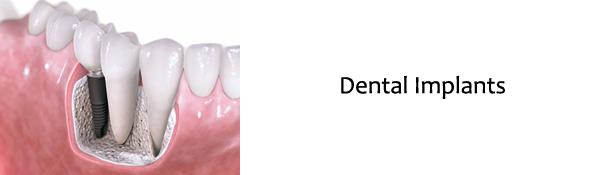 Raritan Dentist - Dental Implants