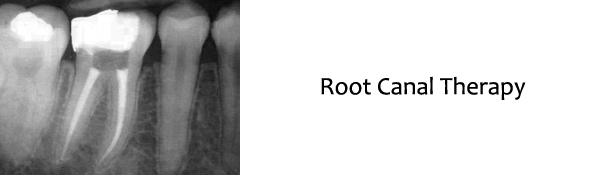 Raritan Dentist - Root Canal Therapy