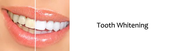 Raritan Dentist - Tooth Whitening