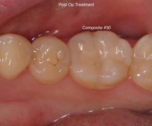 Raritan Dentist - Composite Filling
