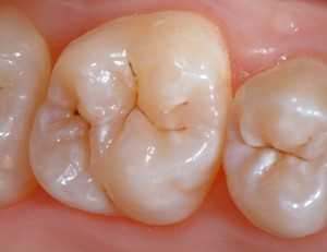 Raritan Dentist - Before Sealants
