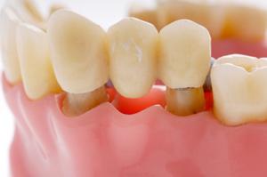 Raritan Dentist - Dental Bridge