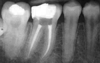 Raritan Dentist - Root Canal