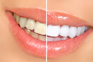 Raritan Dentist - Teeth Whitening